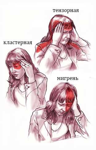 головные-боли